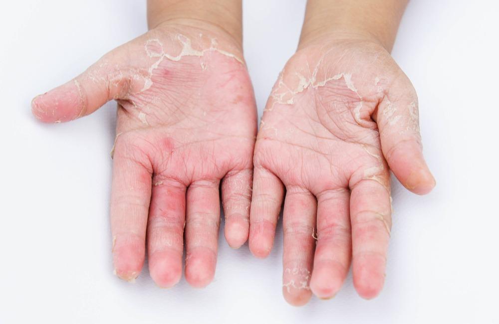 Skin (Dermatology) - Header Image