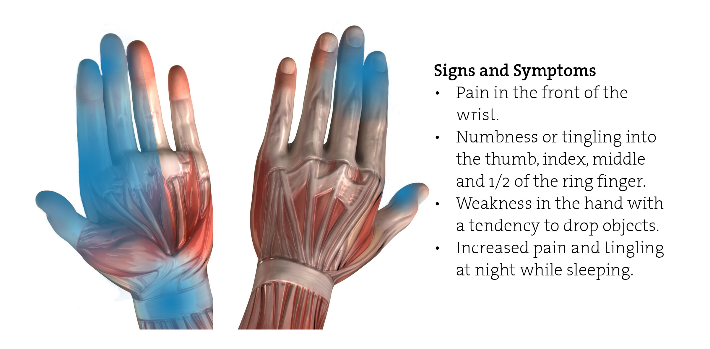 Carpal Tunnel Syndrome (CTS) In The Workplace - Header Image