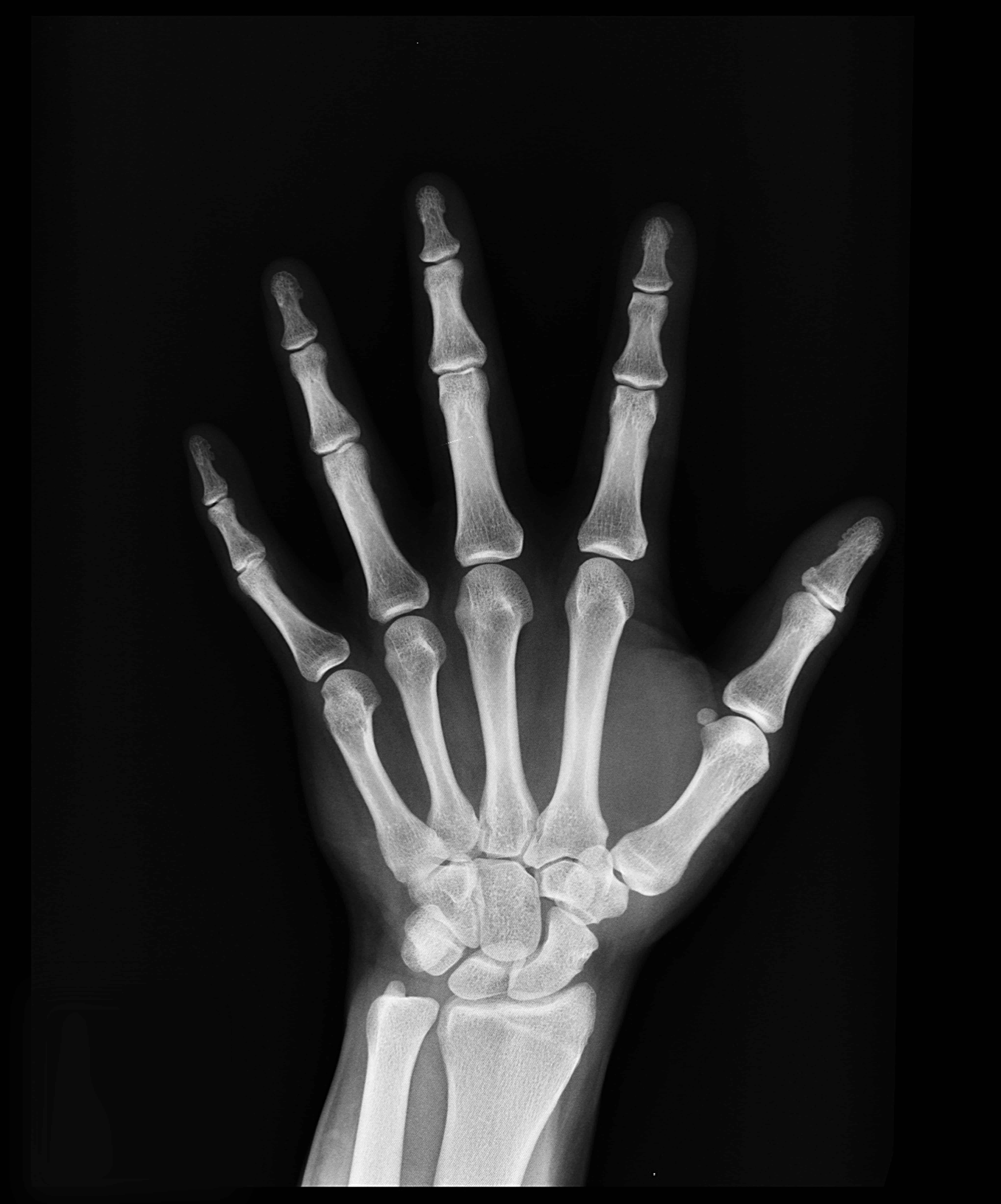 Avoiding Hand Injuries In The Workplace - Header Image